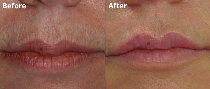 Lip Rejuvenation with Restylane Lodi