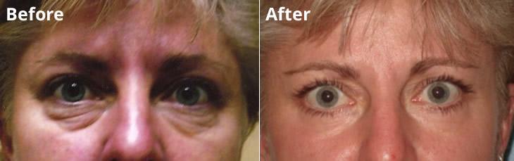 Lower Eyelid and Laser Rejuvenation Lodi