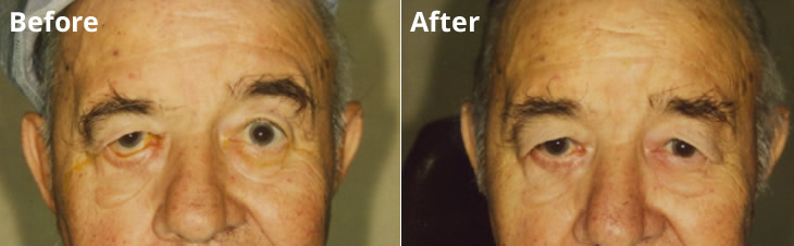 Bells Palsty Reconstruction of right Lower Eyelid Lodi