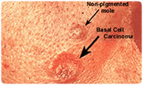 Non-pigmented Mole vs. Basal Cell Carcinoma at Caleyes.com