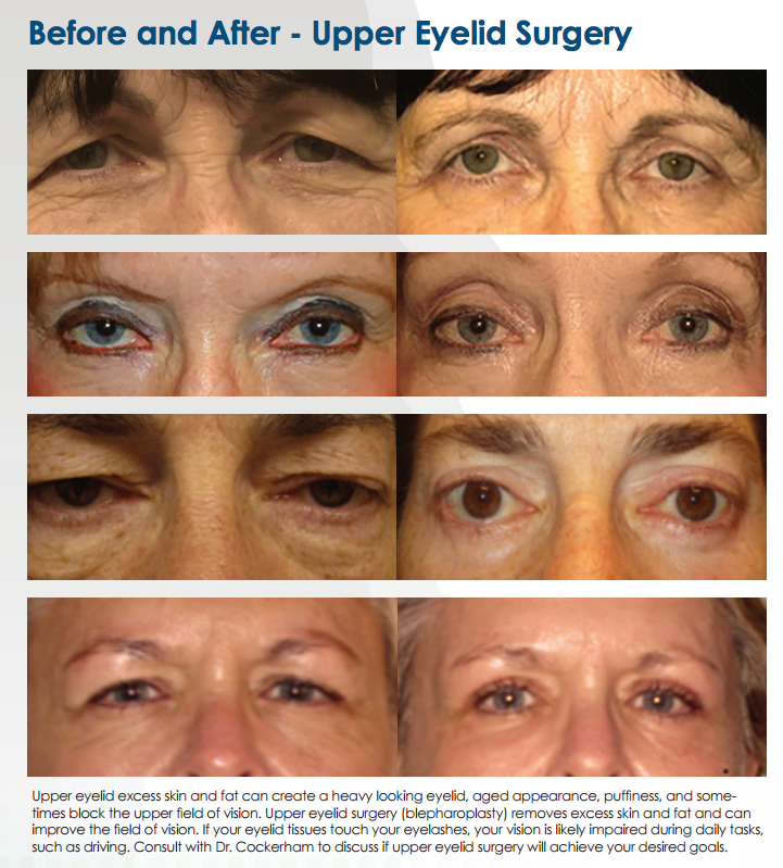 Upper Eyelid Surgery Lodi Dr. Cockerham