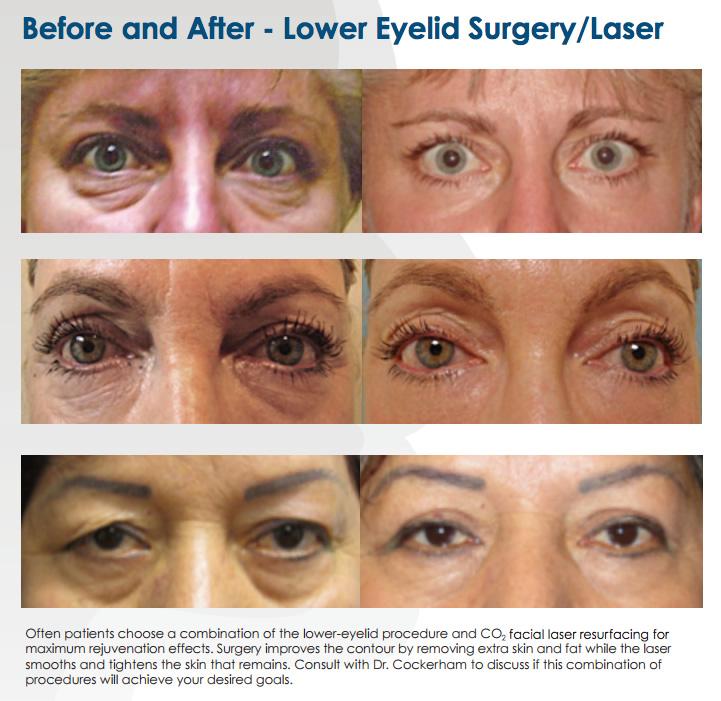 Lower Eyelid Surgery Lodi Dr. Cockerham