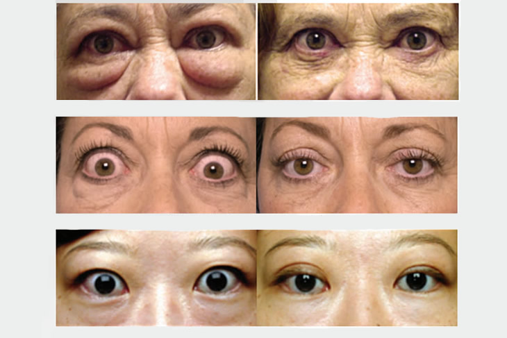Medical Eyelid Rejuvenation Modesto, CA