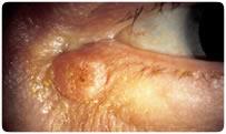 Keratoacanthoma, Dr. Cockerham in California