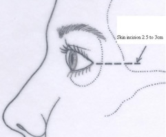 Incision | Orbital Decompression | Central Valley Eye Medical Group