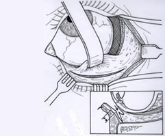 Lower Area Worked On | Orbital Decompression | Central Valley Eye Medical Group