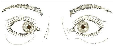 Strabismus Stockton CA | Eye Misalignment | Esotropia