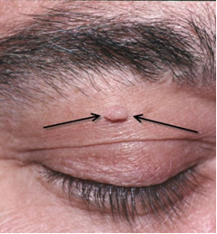 Eye Reconstruction for Skin Tags Manteca CA | Skin Tags Stockton CA